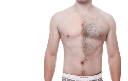 男の脱毛|夏前にケアしておきたい男のムダ毛処理方法とは?